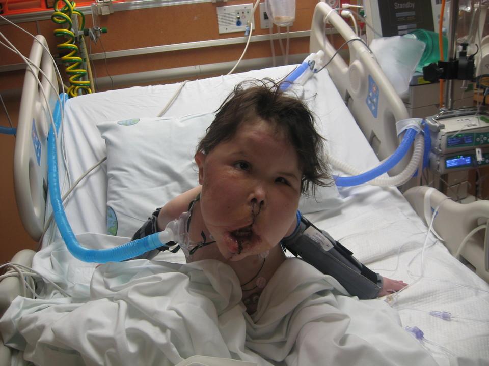 636400707369555881 - بیماری عجیب و نادر دختر ۹ ساله + عکس