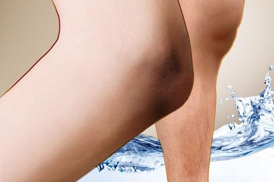 بهداشت و زیبایی: زانوها و آرنجهای تیره درمان میشود؟