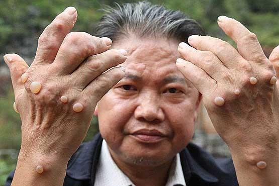 بیماری ناشناخته بیماری نادر بیماری عجیب اخبار حوادث اخبار چین