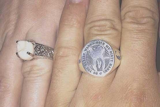 عجیب ترین حلقه ازدواج دنیا را ببینید + عکس