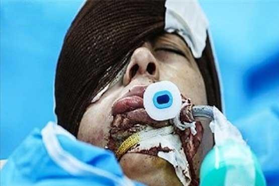 عکس تومور سرطانی سوابق دکتر محمد صمدیان بیمارستان لقمان حکیم بیمارستان فارابی بزرگترین تومور
