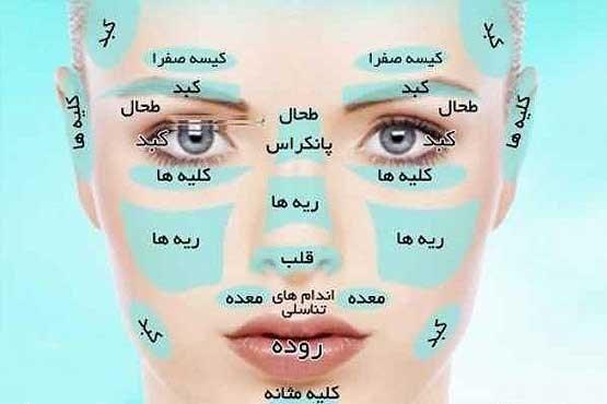 تشخیص 10 بیماری از روی چهره انسان + عکس