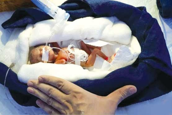 کم وزن ترین نوزاد جهان + عکس