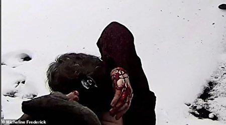 حمله خونین سنجاب ها به ساکنان منطقه ای در نیویورک
