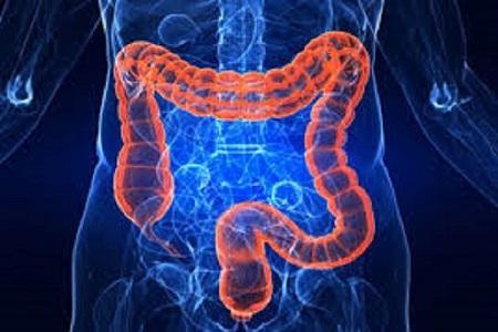 سو جذب روده باعث چه بیماریهایی میشود؟